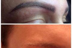 permanent-make-up-entfernen-wien