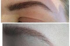 permanent-make-up-entfernen6