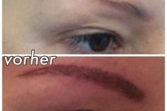 permanent-make-up-entfernen7